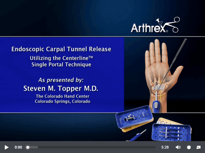 Endoscopic Carpal Tunnel Release Video